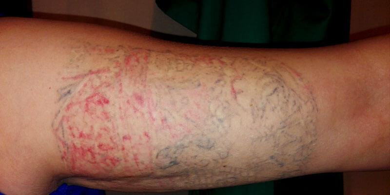 Inferno-tattoo-barcelona-4-sesion-borrado-tatuaje