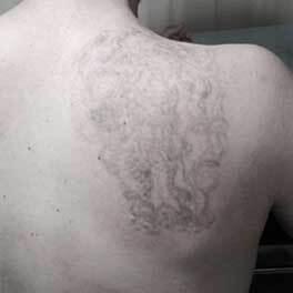 4 sesiones de tatuaje
