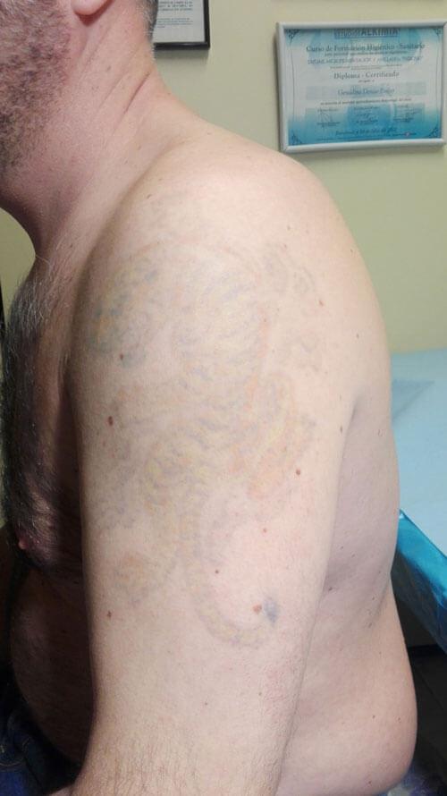 inferno-tattoo-barcelona-laser-borrado-de-tatuaje-juan-antonio-sexta-sesion