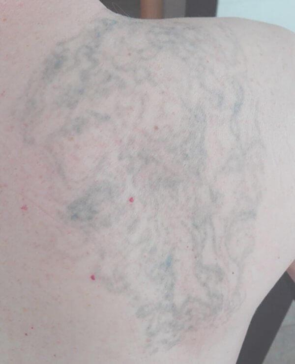 Resultado después de la séptima sesión de borrado de tattoo, ¡casi lo tenemos!
