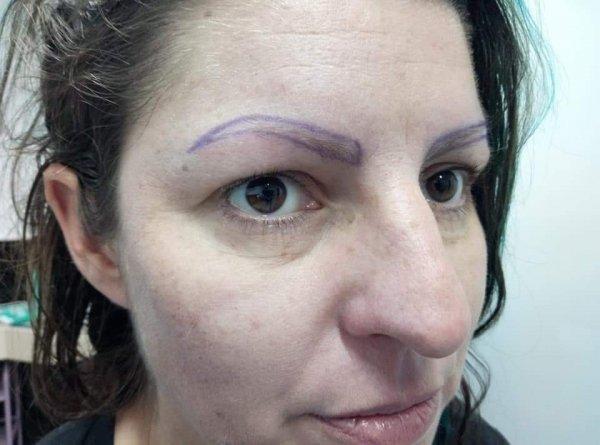 micropimentacion-pelo-a-pelo-castaño-oscuro-antes-hospitalet-de-llobregat-diego-villar