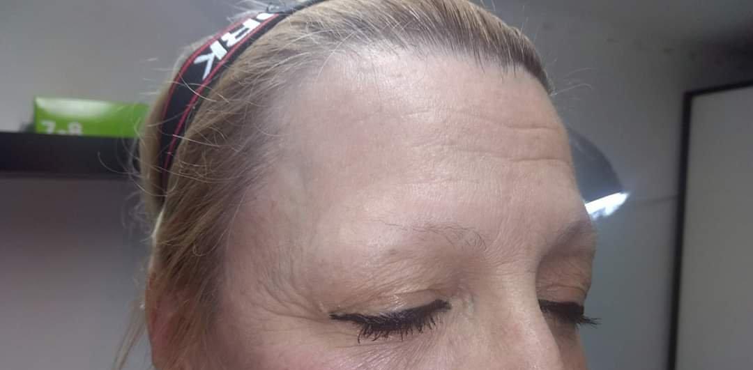 micropimentacion-pelo-a-pelo-castaño-oscuro-medio-antes-hospitalet-de-llobregat-diego-villar