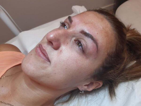 Imagen del después de micropigmentación de cejas