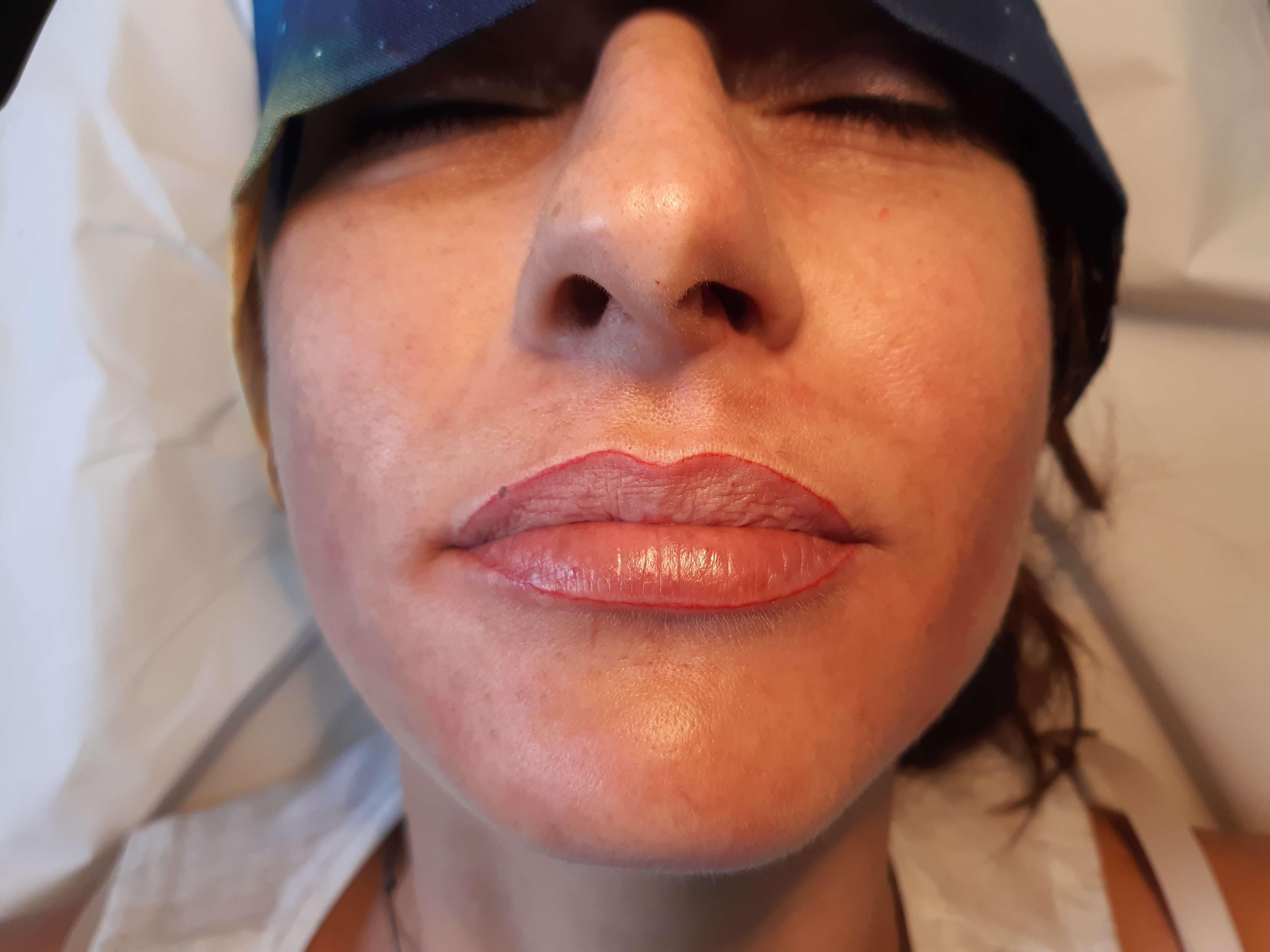 Imagen del antes de maquillaje permanente labios