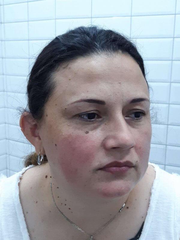 Imagen del antes de micropigmentación de cejas