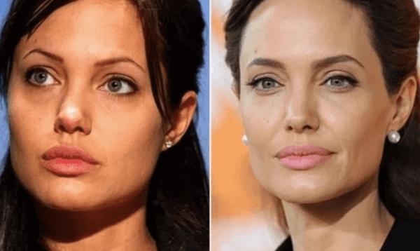 Cejas de Angelina Jolie, antes y después de la micropigmentación, fuente Pinterest.